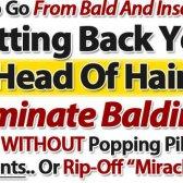 modelo de perda de cabelo opinião pdf - é o guia Quentin útil?